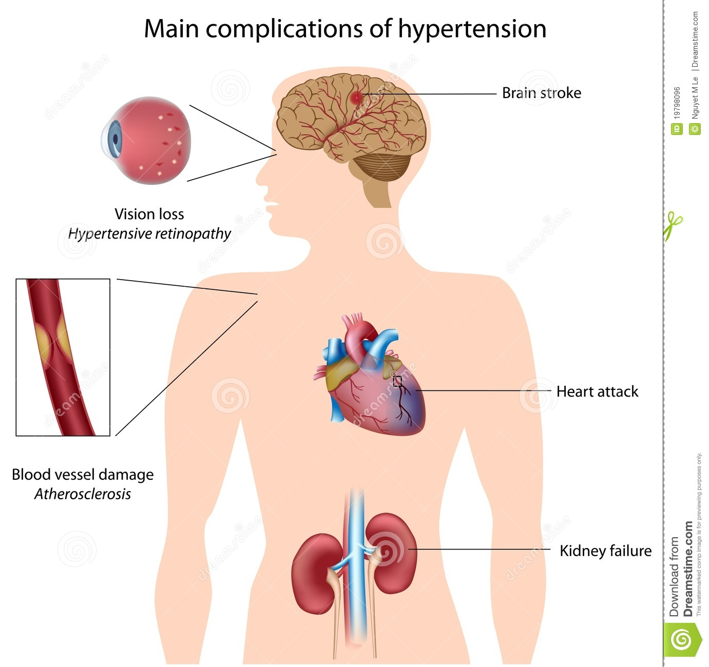 an analysis of the blood pressure and the hypertension disease in the cardiovascular research