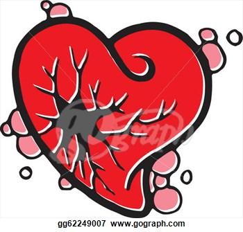 Free Heart Failure Clipart Failure Clip Art...